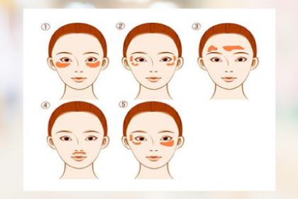 広島の並木Sクリニック施術 肝斑治療(内服・外用薬)